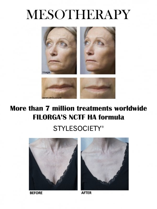 FILORGA Mesotherapy Before and After