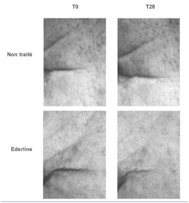 IN-VIVO STUDY shows Significant lifting of the skin surface for 90% of the volunteers